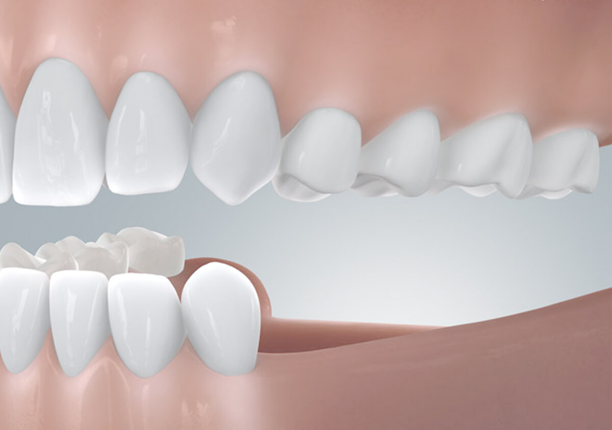 Verkuerzte Zahnreihe ohne Zahnimplantate