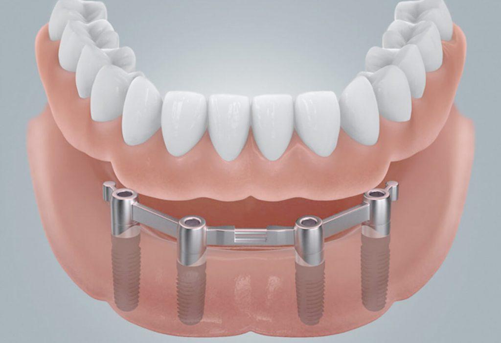 Zahnloser Unterkiefer mit Stegbefestigung